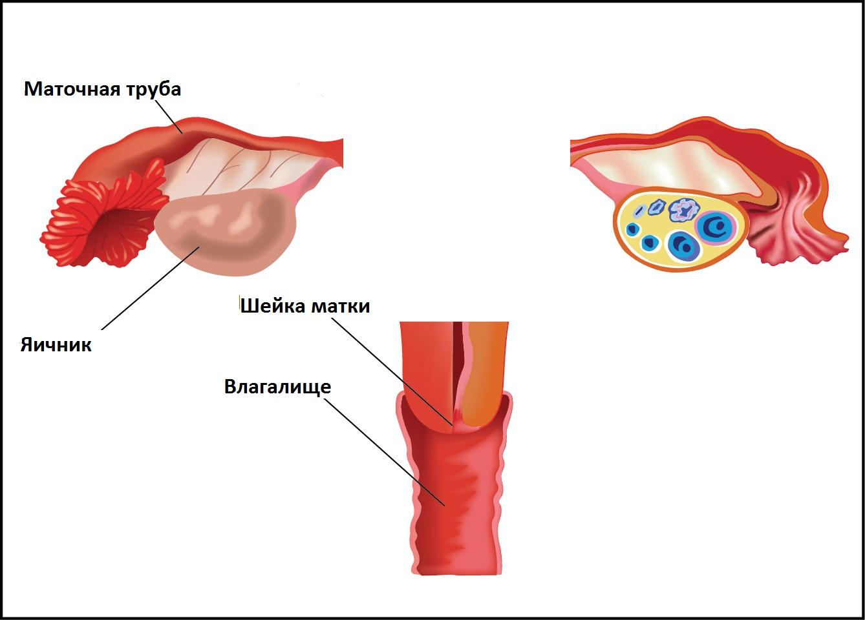 Удаление миомы матки восстановление после операции